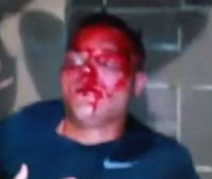 Christopher McKnight beaten by 40 black thugs in Cincinnati simply because he was White